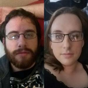 mtf facial hair removed